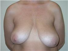 Breast Lift Before Photo by Steven Pisano, MD; San Antonio, TX - Case 30111