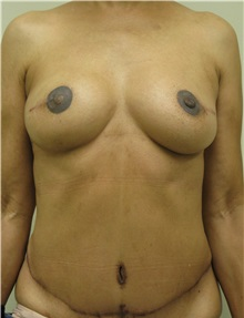 Free-Flap Breast Reconstruction After Photo by Steven Pisano, MD; San Antonio, TX - Case 30112