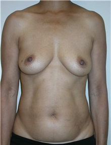 Free-Flap Breast Reconstruction Before Photo by Steven Pisano, MD; San Antonio, TX - Case 30112