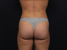Liposuction After Photo by John Corey, MD; Scottsdale, AZ - Case 24717