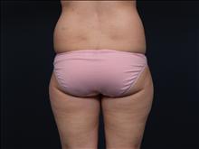 Liposuction Before Photo by John Corey, MD; Scottsdale, AZ - Case 24717