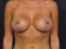 Breast Lift After Photo by John Corey, MD; Scottsdale, AZ - Case 24799