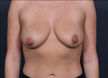 Breast Lift Before Photo by John Corey, MD; Scottsdale, AZ - Case 24799