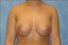 Breast Augmentation After Photo by George John Alexander, MD, FACS; Las Vegas, NV - Case 24011