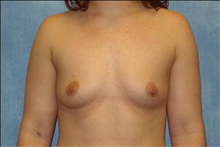 Breast Augmentation Before Photo by George John Alexander, MD, FACS; Las Vegas, NV - Case 24011