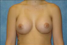 Breast Augmentation After Photo by George John Alexander, MD, FACS; Las Vegas, NV - Case 24012