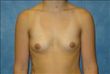 Breast Augmentation Before Photo by George John Alexander, MD, FACS; Las Vegas, NV - Case 24012