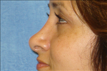 Rhinoplasty After Photo by George John Alexander, MD, FACS; Las Vegas, NV - Case 24055