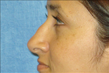 Rhinoplasty Before Photo by George John Alexander, MD, FACS; Las Vegas, NV - Case 24055