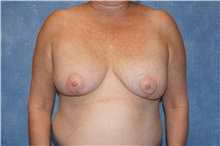 Breast Implant Removal After Photo by George John Alexander, MD, FACS; Las Vegas, NV - Case 30812