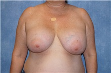 Breast Implant Removal Before Photo by George John Alexander, MD, FACS; Las Vegas, NV - Case 30812