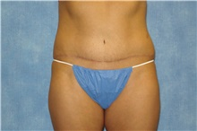 Tummy Tuck After Photo by George John Alexander, MD, FACS; Las Vegas, NV - Case 31276
