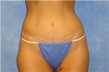 Tummy Tuck After Photo by George John Alexander, MD, FACS; Las Vegas, NV - Case 31278