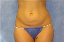 Tummy Tuck Before Photo by George John Alexander, MD, FACS; Las Vegas, NV - Case 31278