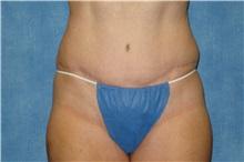 Tummy Tuck After Photo by George John Alexander, MD, FACS; Las Vegas, NV - Case 31279