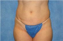 Tummy Tuck Before Photo by George John Alexander, MD, FACS; Las Vegas, NV - Case 31279