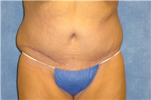 Tummy Tuck After Photo by George John Alexander, MD, FACS; Las Vegas, NV - Case 31282