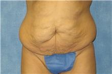 Tummy Tuck Before Photo by George John Alexander, MD, FACS; Las Vegas, NV - Case 31282