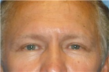 Eyelid Surgery After Photo by George John Alexander, MD, FACS; Las Vegas, NV - Case 31283