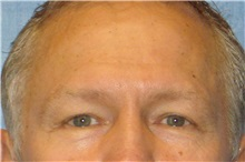 Eyelid Surgery Before Photo by George John Alexander, MD, FACS; Las Vegas, NV - Case 31283