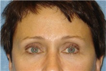Eyelid Surgery After Photo by George John Alexander, MD, FACS; Las Vegas, NV - Case 31284
