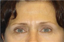 Eyelid Surgery Before Photo by George John Alexander, MD, FACS; Las Vegas, NV - Case 31284