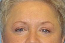 Eyelid Surgery After Photo by George John Alexander, MD, FACS; Las Vegas, NV - Case 31287