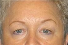 Eyelid Surgery Before Photo by George John Alexander, MD, FACS; Las Vegas, NV - Case 31287