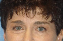 Brow Lift After Photo by George John Alexander, MD, FACS; Las Vegas, NV - Case 31288