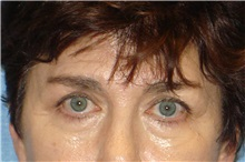 Brow Lift Before Photo by George John Alexander, MD, FACS; Las Vegas, NV - Case 31288
