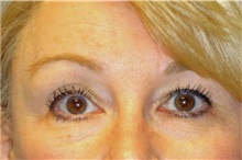 Brow Lift After Photo by George John Alexander, MD, FACS; Las Vegas, NV - Case 31289