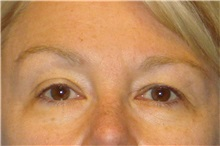 Brow Lift Before Photo by George John Alexander, MD, FACS; Las Vegas, NV - Case 31289