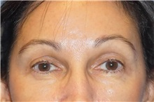 Brow Lift After Photo by George John Alexander, MD, FACS; Las Vegas, NV - Case 31291