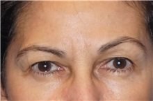 Brow Lift Before Photo by George John Alexander, MD, FACS; Las Vegas, NV - Case 31291