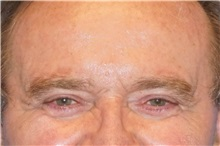 Eyelid Surgery After Photo by George John Alexander, MD, FACS; Las Vegas, NV - Case 31292