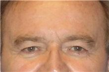 Eyelid Surgery Before Photo by George John Alexander, MD, FACS; Las Vegas, NV - Case 31292