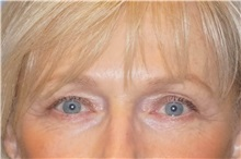Eyelid Surgery After Photo by George John Alexander, MD, FACS; Las Vegas, NV - Case 31293