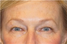 Eyelid Surgery Before Photo by George John Alexander, MD, FACS; Las Vegas, NV - Case 31293