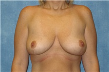 Breast Lift After Photo by George John Alexander, MD, FACS; Las Vegas, NV - Case 31294
