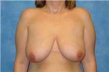 Breast Lift Before Photo by George John Alexander, MD, FACS; Las Vegas, NV - Case 31294