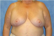 Breast Reduction After Photo by George John Alexander, MD, FACS; Las Vegas, NV - Case 31295