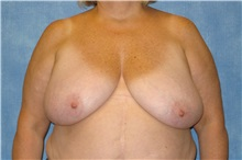 Breast Reduction Before Photo by George John Alexander, MD, FACS; Las Vegas, NV - Case 31295