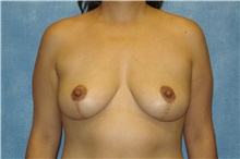 Breast Lift After Photo by George John Alexander, MD, FACS; Las Vegas, NV - Case 31297
