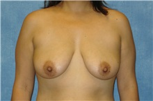 Breast Lift Before Photo by George John Alexander, MD, FACS; Las Vegas, NV - Case 31297