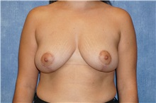 Breast Lift After Photo by George John Alexander, MD, FACS; Las Vegas, NV - Case 31298