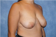 Breast Lift Before Photo by George John Alexander, MD, FACS; Las Vegas, NV - Case 31298