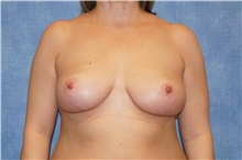 Breast Lift After Photo by George John Alexander, MD, FACS; Las Vegas, NV - Case 31299