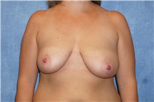 Breast Lift Before Photo by George John Alexander, MD, FACS; Las Vegas, NV - Case 31299