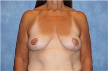 Breast Lift After Photo by George John Alexander, MD, FACS; Las Vegas, NV - Case 31300