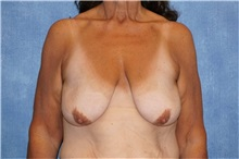 Breast Lift Before Photo by George John Alexander, MD, FACS; Las Vegas, NV - Case 31300